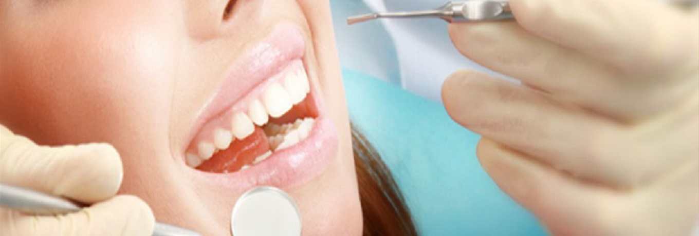 Dental Services and Teeth Whitening